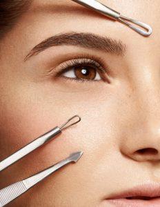 Las causas del acné según la zona del rostro