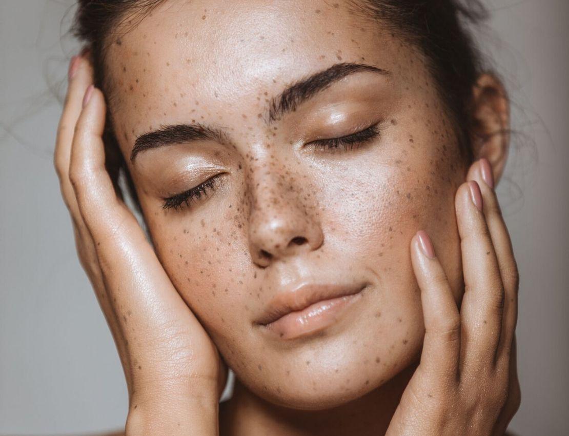 acido hialuronico para la piel