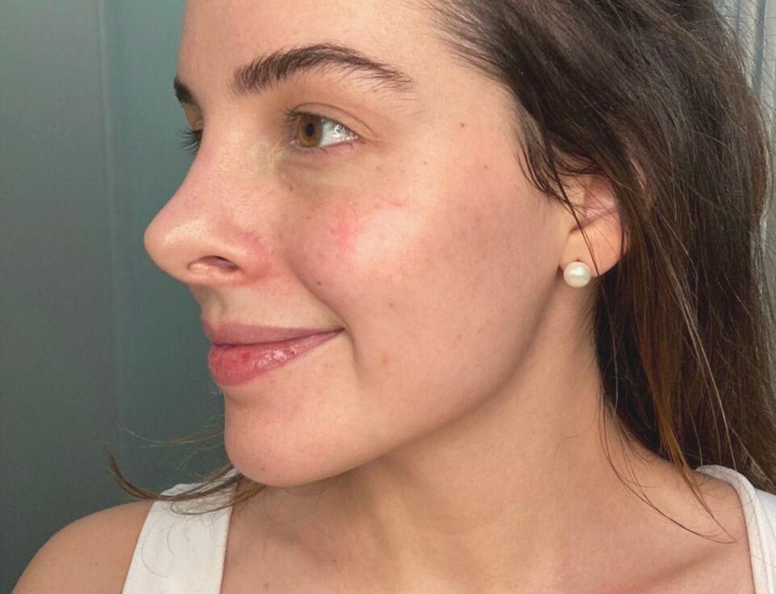 Probé este masaje facial durante la cuarentena y estos fueron los resultados