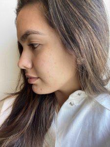 Probé un protocolo de skincare por un mes y mi piel cambió por completo